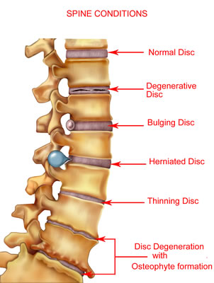diagram of spine conditions including herniated disc