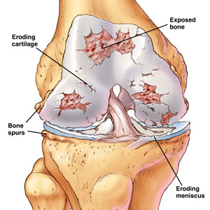 picture of knee arthritis