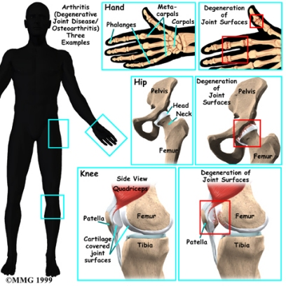 diagram of osteoarthrits examples in hand, hip, and knee