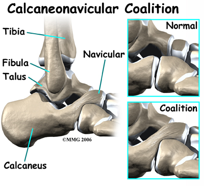 calaneonavicular coalition to explain tarsal coalition