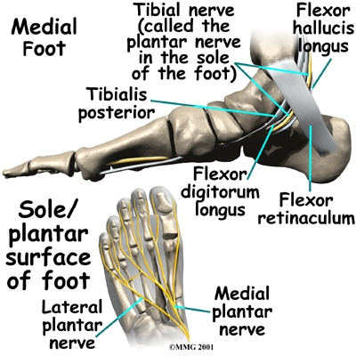 tarsal tunnel syndrome diagram