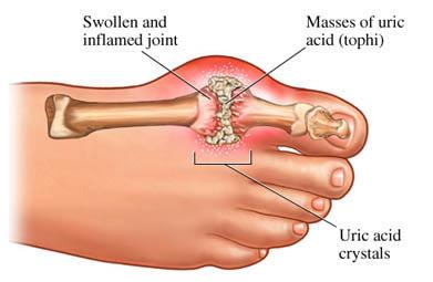 gouty arthritis diagram