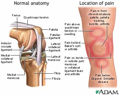 diagram of normal knee and knee pain