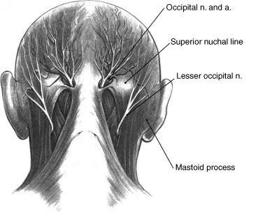 diagram of Occipital Neuralgia