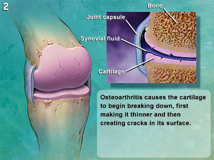 diagram of osteoarthritis in the knee