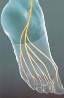 Peripheral Neuropathy in foot