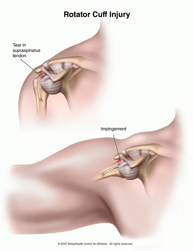 rotator cuff injury diagram