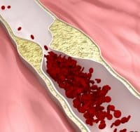 Avascular Necrosis (AVN), Regenerative Medicine and Stem Cells