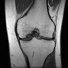 av knee 2