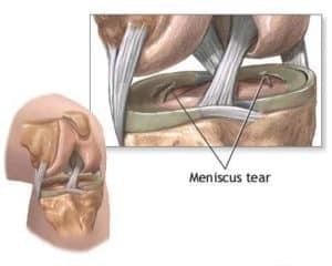 Meniscal_Tear2