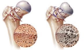 Hip Arthritis and Stem Cell Therapy