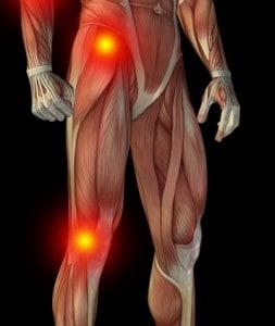 Osteoarthritis of the Hip and Knee  Osteoarthritis Hip Pain