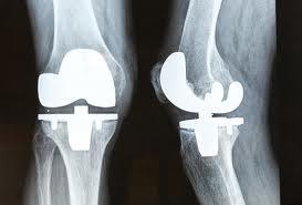 knee rep