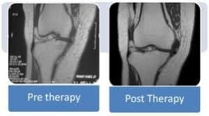 Before and After Stem Cell Therapy