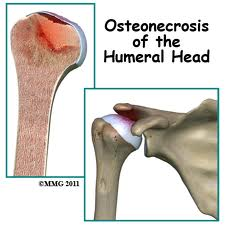 Humeral Head
