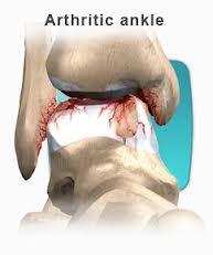 arthritic ankle diagram