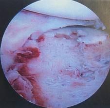 Chondrolysis