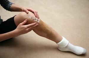 knee replace