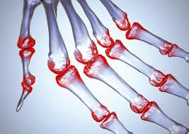 Multi-Joint Arthritis: Deciding on Stem Cell Therapy