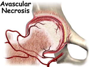 avascular-necrosis-avn-ischemic-necrosis-stem-cells