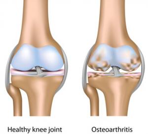 healthy-knee-vs-osteoarthritis