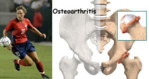 hip-osteoarthritis-prp