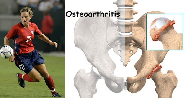 Hip Osteoarthritis Oa Treated With Stem Cell Therapy