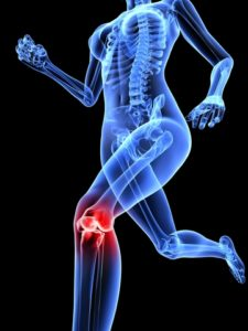 prp-therapy-knee-replacement