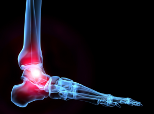 ankle-pain-stems-cells-prp