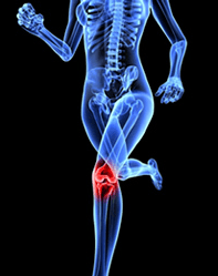 knee-arthritis-and-treatment-with-platelet-rich-therapy