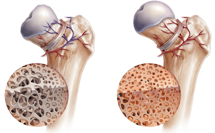 Avascular Necrosis Osteonecrosis And Stem Cell Therapy