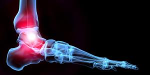 chronic-ankle-pain