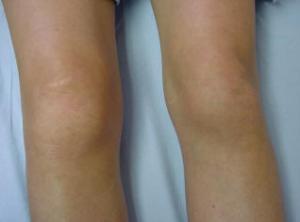 knee-rheumatoid-arthritis-and-stem-cell-therapy
