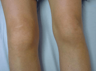 Knee Rheumatoid Arthritis And Stem Cell Therapy Dr Lox