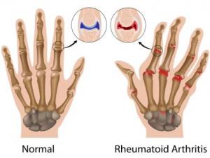 wrist-rheumatoid-arthritis