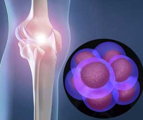 Stem Cell Therapy for Knee AVN or Osteonecrosis