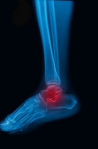 diagram of leg with ankle pain