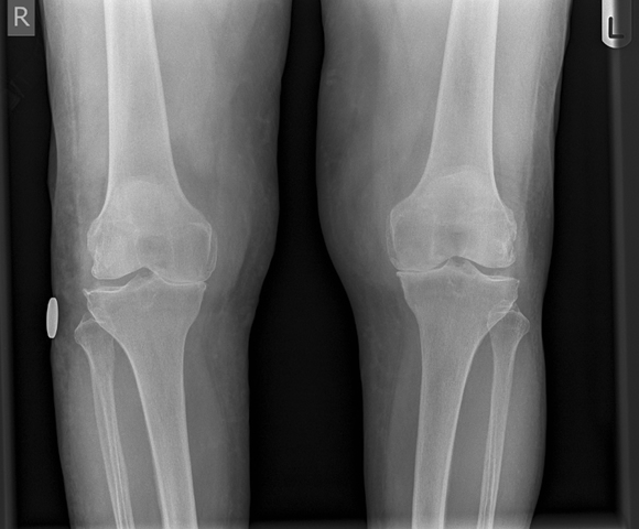 Patient With Bilateral Knee Osteoarthritis Discusses Stem