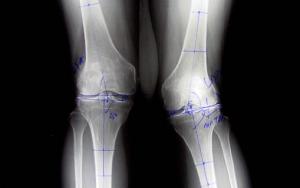 rheumatoid-knee-arthritis-responds-to-stem-cell-treatment