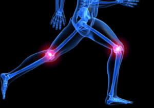 rheumatoid-knee-arthritis-and-stem-cell-therapy