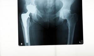 stem-cells-alternative-to-hip-replacement