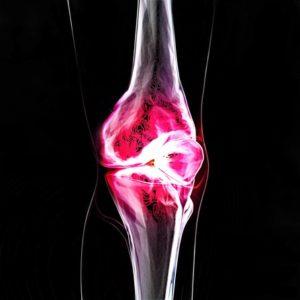 autoimmune-disorders-knee-pain-arthritis