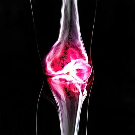 Knee ACL Tears and Stem Cells