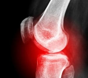 Stem Cells in a Jai Alai Player with a Knee Meniscal Tear