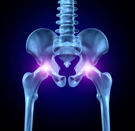 Hip Pain: New Frontiers with Stem Cell Therapy
