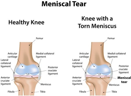 meniscal tear causes knee pain