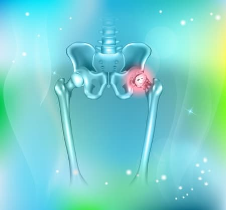 diagram of hip pain