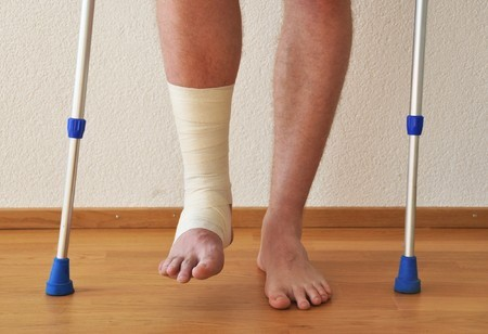 After Ankle Fracture AVN May Develop
