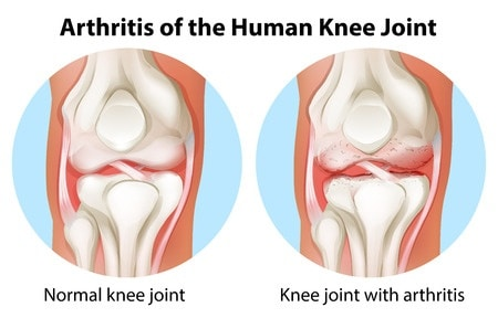 Knee Osteoarthritis (Arthritits) and Stem Cells