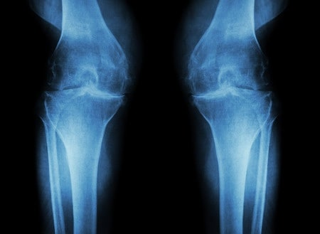 A patient with Knee Arthritis in Los Angeles treats with Stem Cells